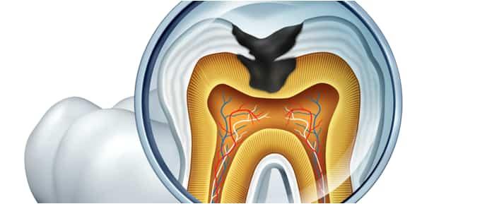 ノア歯科クリニック中目黒の虫歯治療