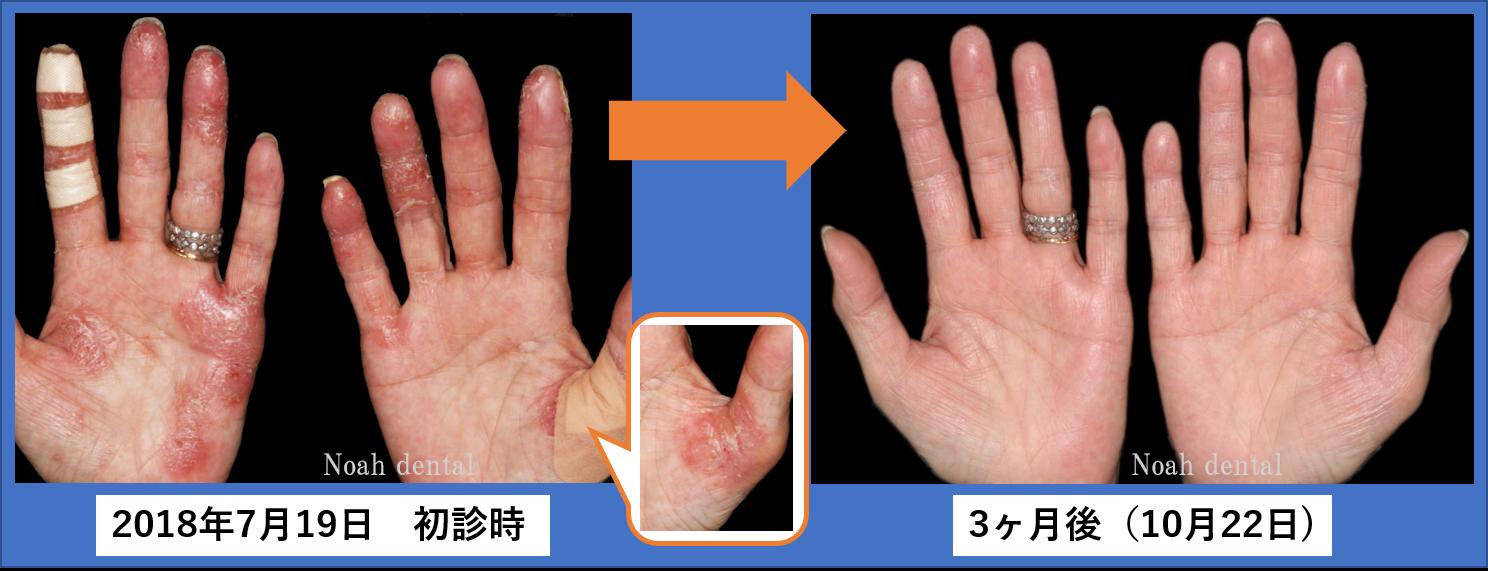 手のひら の 皮 が むける 病気
