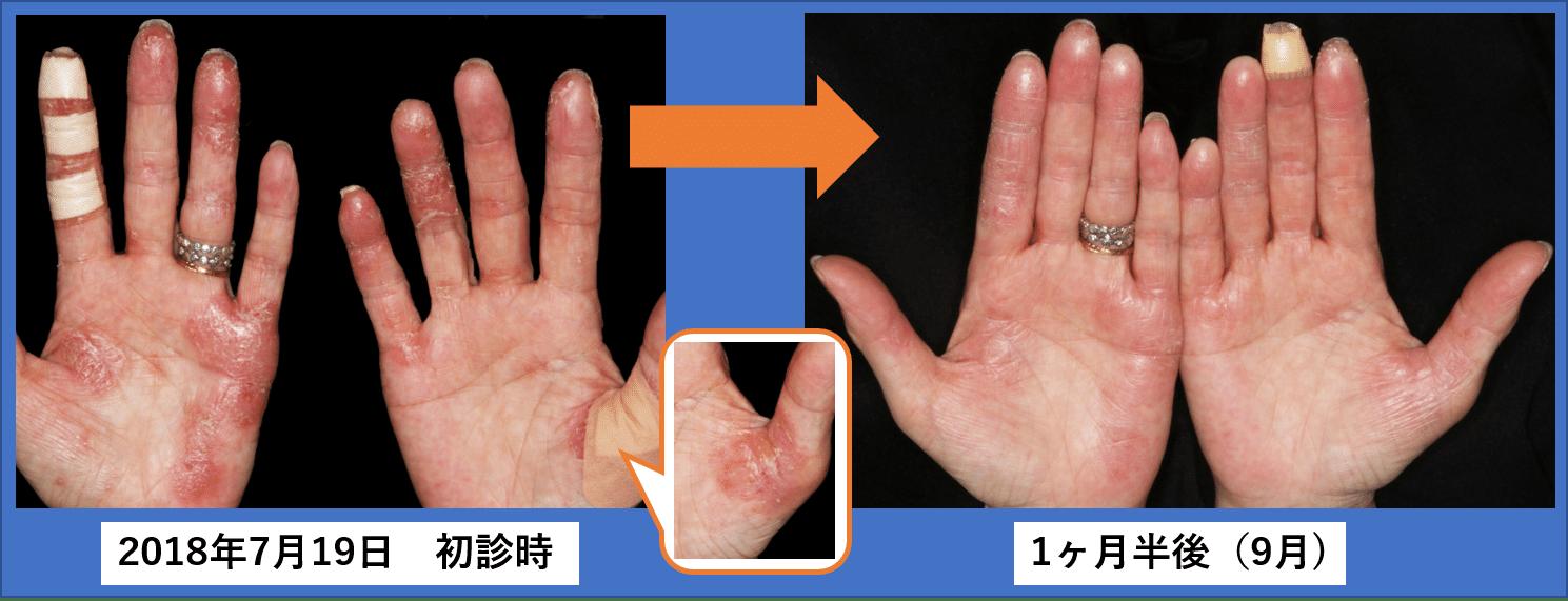 膿疱 原因 蹠 掌
